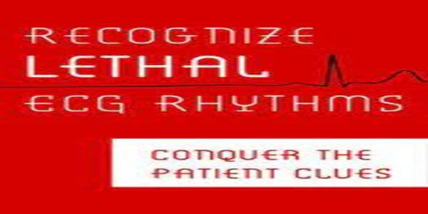 Recognize Lethal ECG RhythmsConquer the Patient Clues - Robin Gilbert (1)